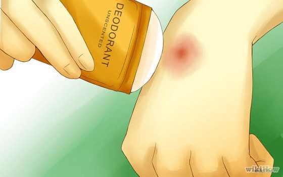 Stop Mosquito Bites